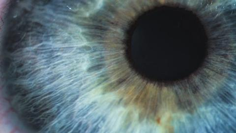 Pearls for building the corneal inlay patient base in your practice