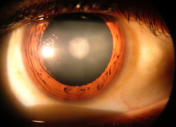 Study: Cataract surgery linked to increased risk of heart attack, stroke