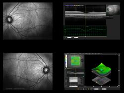 Choroidal hypertransmission defects on en face OCT imaging predict geographic atrophy in patients
