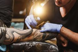 Case report: Intermediate uveitis caused by black ink tattoo