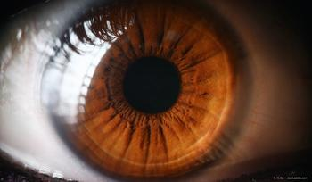 Protocol T Extension Study shows long-term visual declines in DME eyes