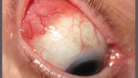 Casting a net to diagnose, treat cancerous lesions