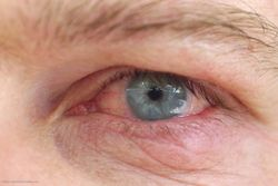 Managing dry eye key to patient satisfaction after cataract, refractive surgeries