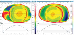 The relationship between myopia and conjunctival-scleral geometry