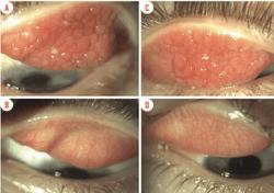 FDA approves cyclosporine A eye drop for vernal keratoconjunctivitis
