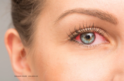 Optineurin: Defending against viral infections of the eye