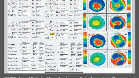 2019: State of corneal crosslinking for patients with keratoconus
