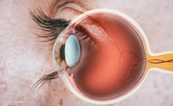 DED results in imbalance of neuropeptides, neurotrophins in the cornea and trigeminal ganglion