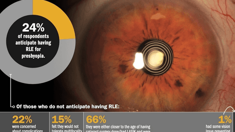 Dispelling myths about refractive lens exchange