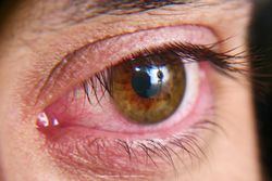 Treatment option for dry eye secondary to graft-vs-host disease