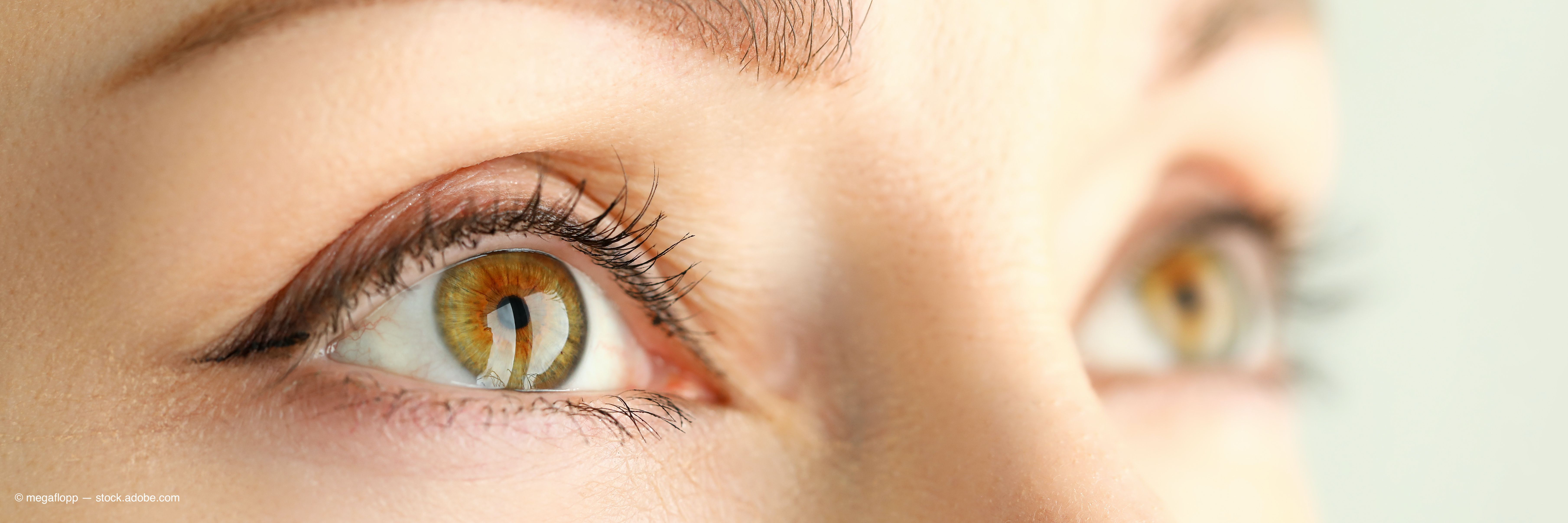 Thyroid Eye Disease Not Limited To Visual Impairment