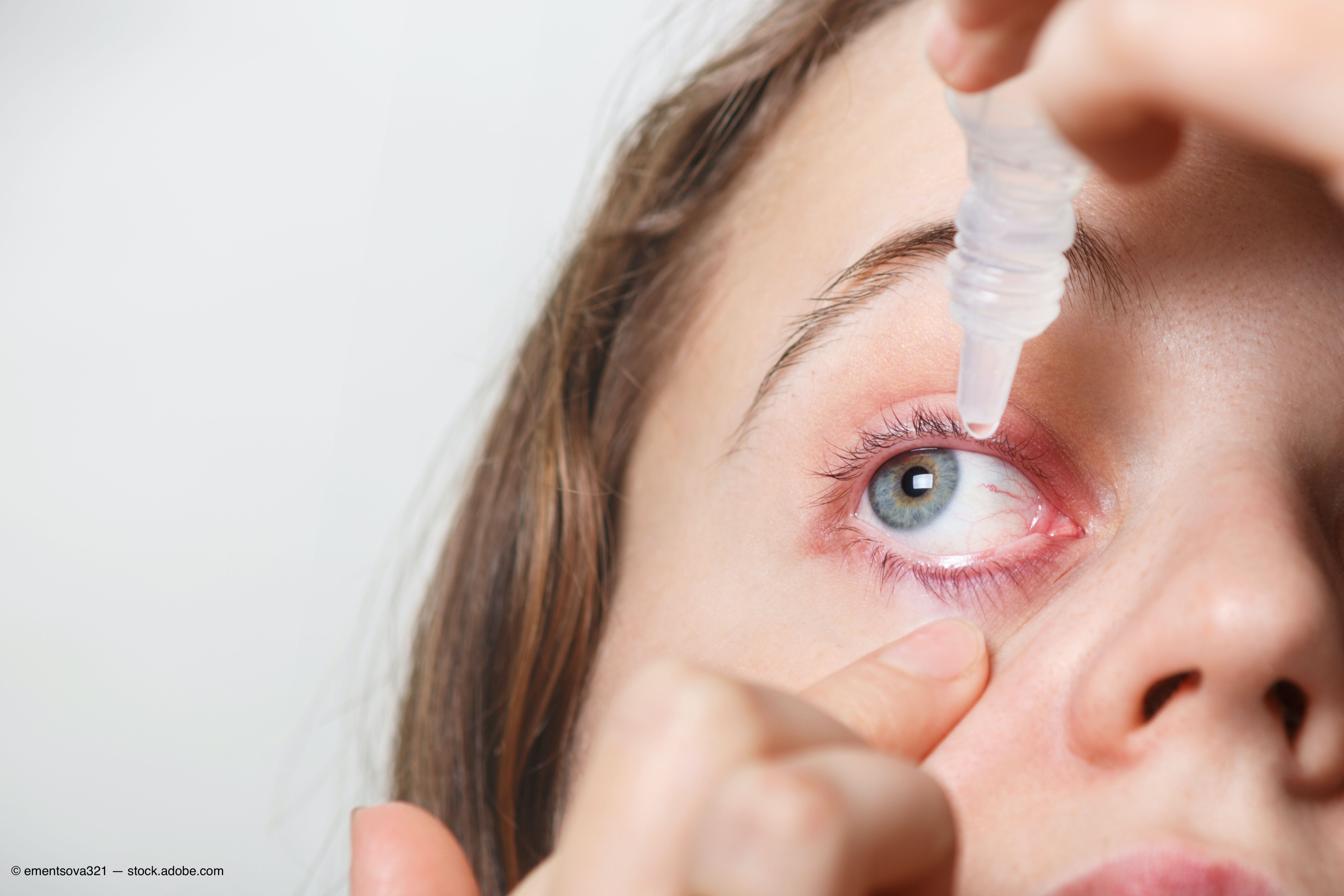 »MYTH No. 1: Autologous serum is a treatment of last resort mostly used by cornea specialists