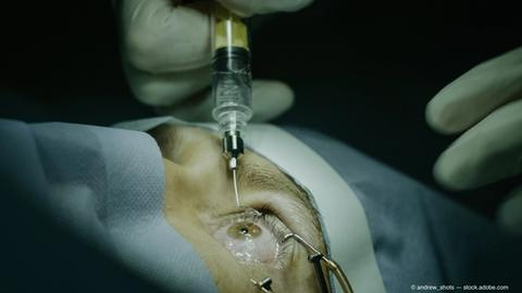 Improve patient comfort with intravitreal injections