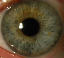 NIH-funded grant to support research to determine which diabetic individuals can donate corneas for transplant