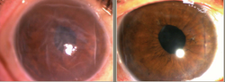 Landmark treatment: Cell therapy advances options for corneal endothelial disease