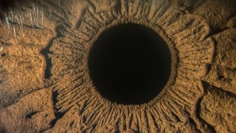Normal tension glaucoma: testing diagnostic skills