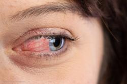 VA, visual function are going the way of ocular inflammation