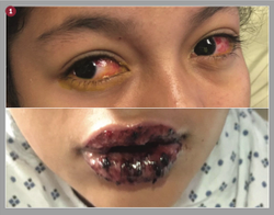 Ocular manifestations of mycoplasma-induced rash and mucositis