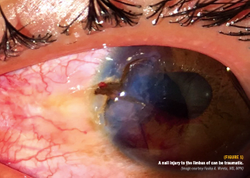 Options for managing the iris after trauma