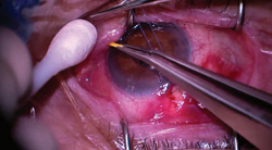 Dexamethasone ophthalmic insert matches drops for inflammation control