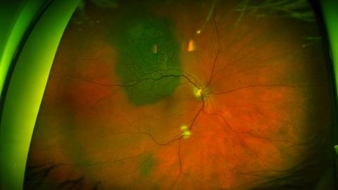 Ultra-widefield imaging can enhance efficiency for practices