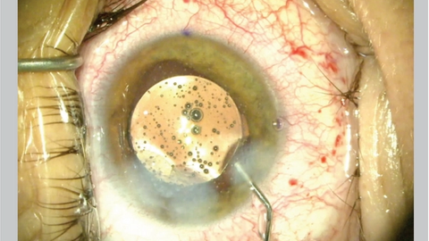 Perioperative medications can eliminate postoperative drops after cataract surgery