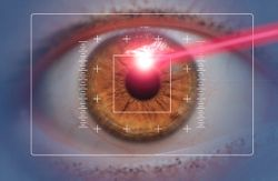 AI enhances customised myopic LASIK with ray tracing optimisation