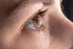 Maximising corneal cross-linking effectiveness