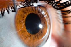 An eye towards plateau iris and its implications for patients