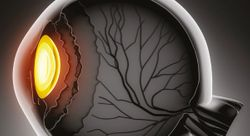 Precision management to revolutionise glaucoma diagnosis and treatment