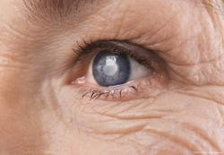 Using pivotal study data to guide glaucoma patient management decisions