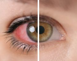 Uveitis: A leading and underestimated cause of visual morbidity in patients