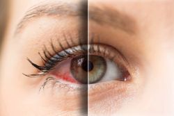How dry eye disease can become a complex vicious cycle