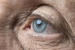 Intravitreal pegcetacoplan proves useful for geographic atrophy: Phase 3 results of OAKS and DERBY studies