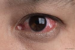 Pearls for ocular surgical success in patients with chronic uveitis