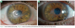 How to fit scleral lenses with confidence and caution