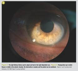 Cataract surgery 2020 update
