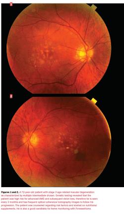 ODs are ignoring macular degeneration