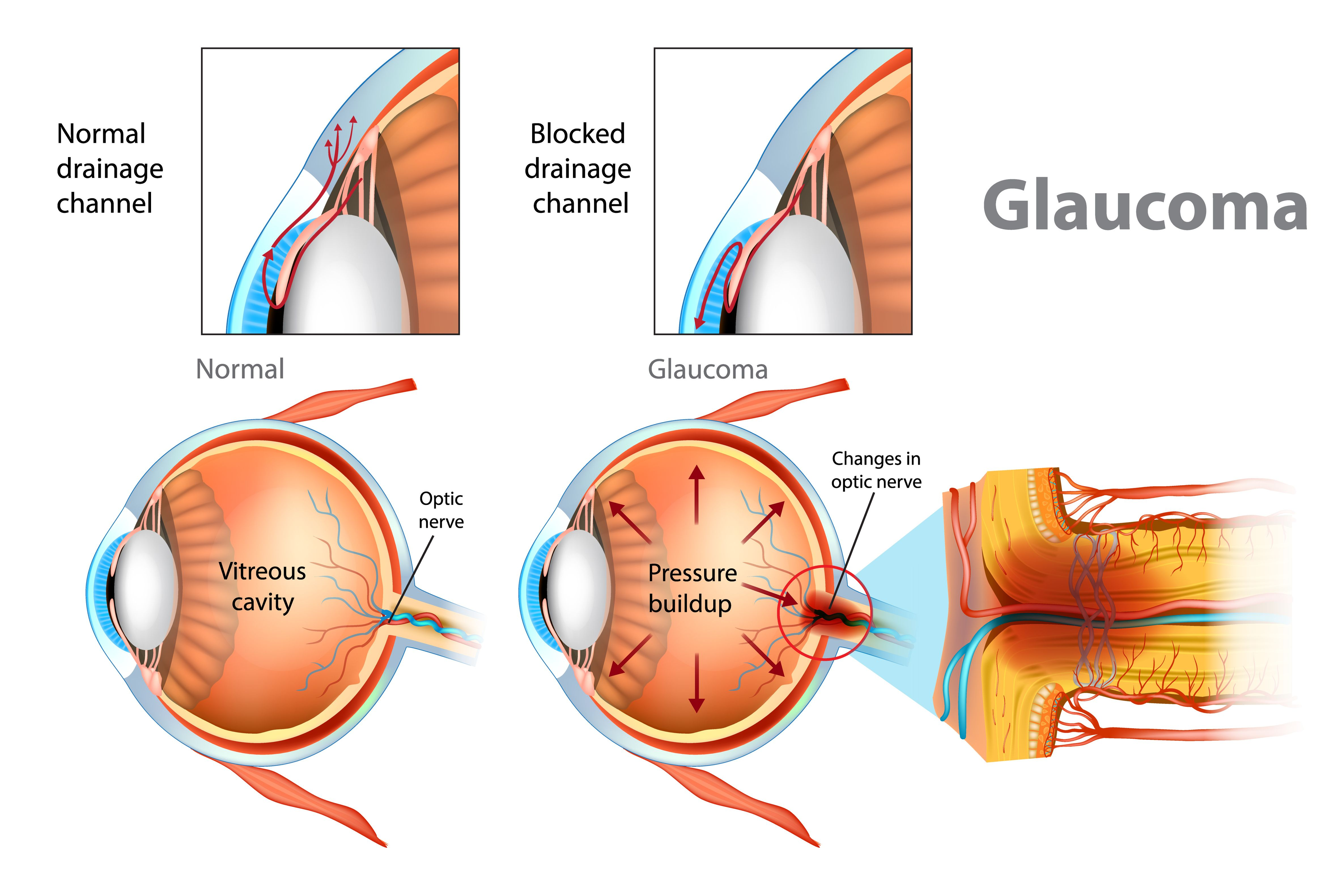 5 glaucoma management myths