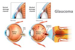 5 glaucoma management myths