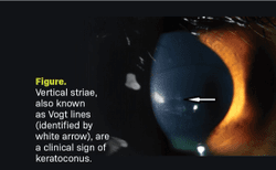 5 myths and misunderstandings about cross-linking and keratoconus