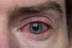 Ocular inflammation: When to drug, when to plug