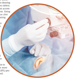 Why ODs should prepare patients for surgery years before they need it