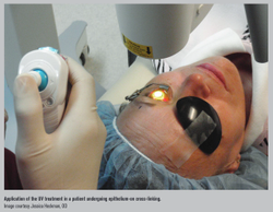 Epi-on cross-linking may speed visual recovery