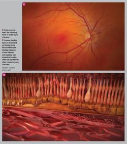 Use dark adaptation to screen before multifocal IOL implantation