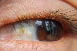 Demodox blepharitis treatment shows positive results, says Tarsus