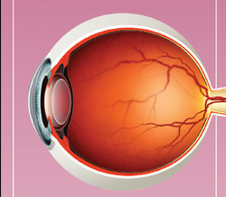 Quiz: Patient experiences sudden decrease in vision