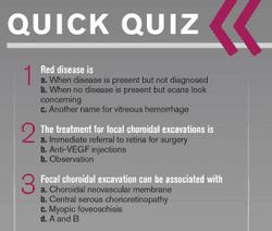 Quiz: OCT helps diagnose macular pathology