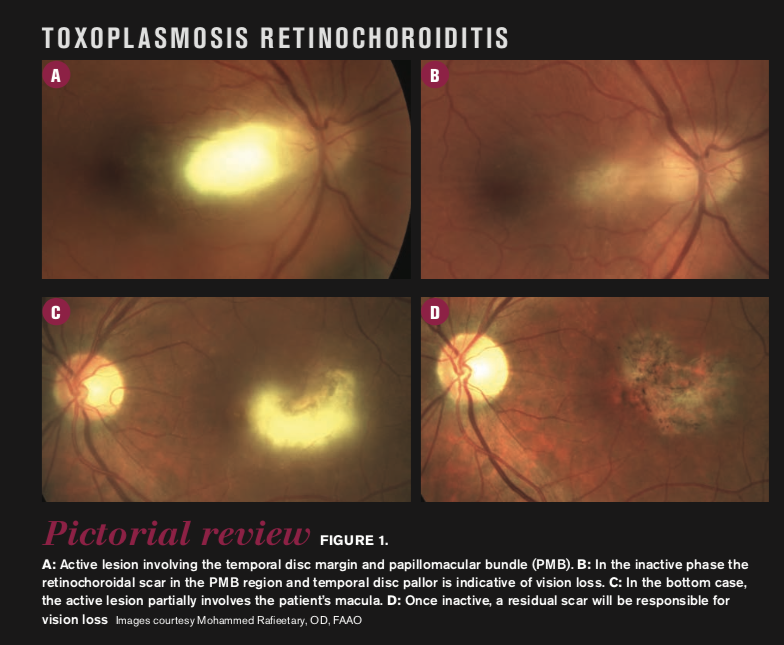 Toxoplasmosis retinochoroiditis pictorial review
