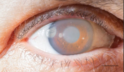 Know what common glaucoma mistakes to avoid